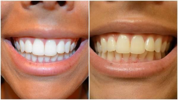 kit de blanchiment dentaire pas cher