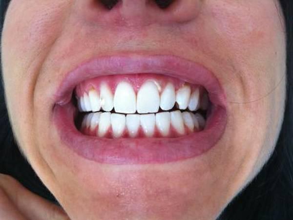 blanchiment dentaire dentiste avant apres