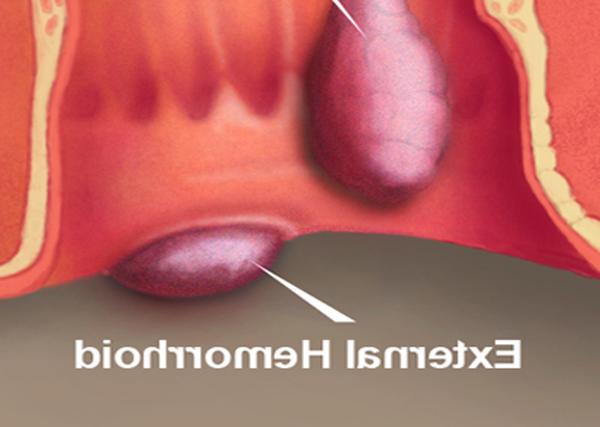 comment soigner une hémorroïde