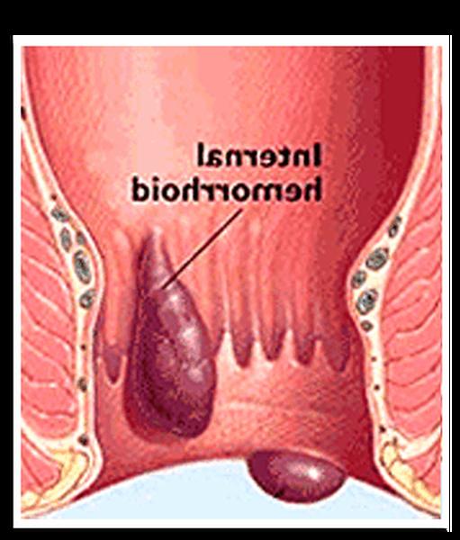 comment soigner les hémorroïdes avec des huiles essentielles
