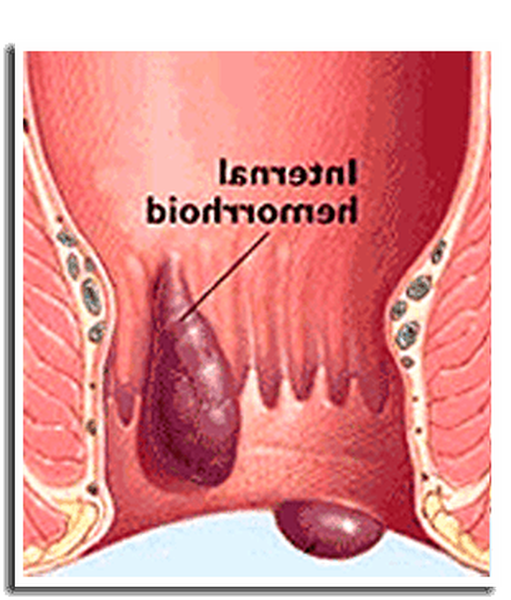 soigner hémorroïdes naturellement