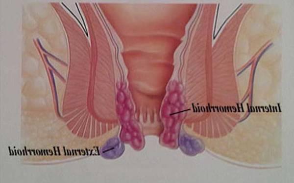 anti inflammatoire hemorroide