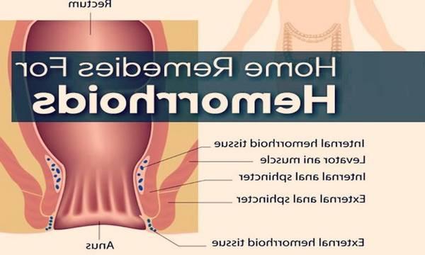 hemorroides internes qui saignent traitement