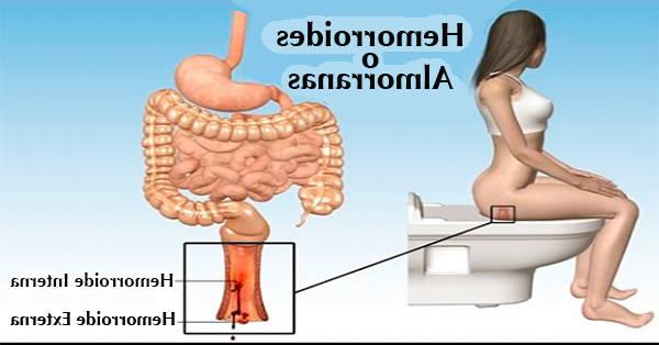comment soulager les hémorroïdes externes